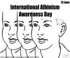 Albinizm Międzynarodowy Dzień